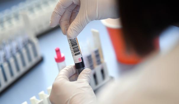 Determinan qué grupo sanguíneo es menos vulnerable ante el coronavirus