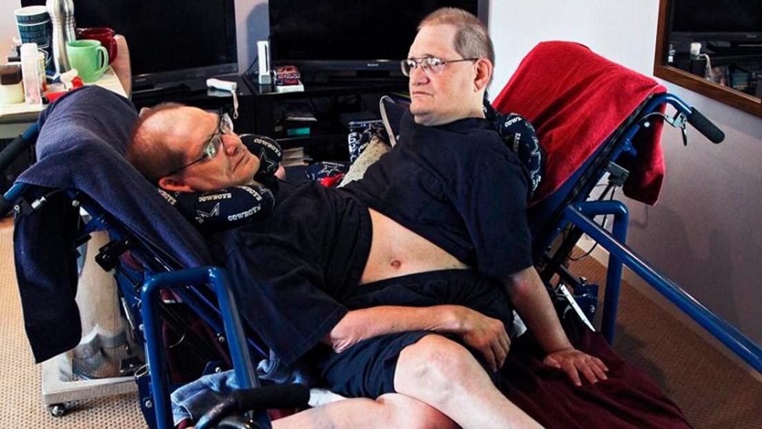 Los hermanos siameses más longevos del mundo mueren a los 68 años
