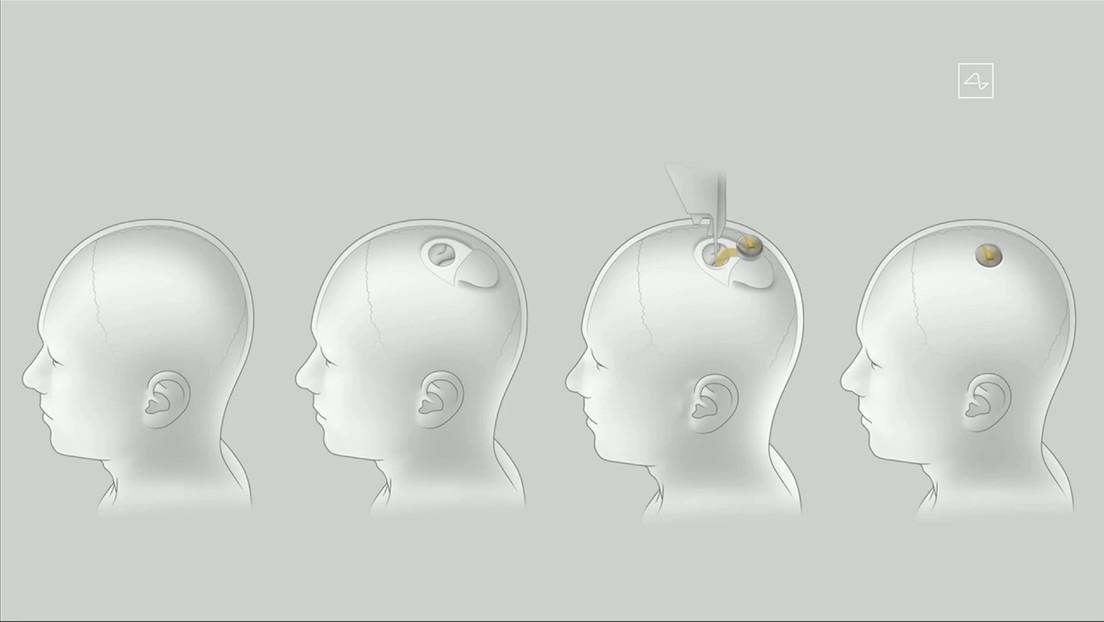 Las redes se inundan de bromas tras la presentación del chip de Neuralink de Elon Musk que se conecta al cerebro