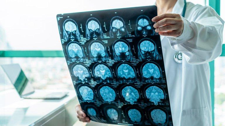 Ataques y derrames: los daños que causa el COVID-19 al cerebro