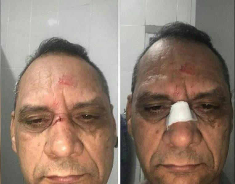 Agreden al director de la Policía Preventiva con una pedrada en el rostro