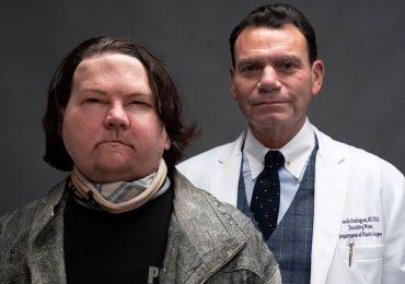 Realizan con éxito primer trasplante de rostro y manos