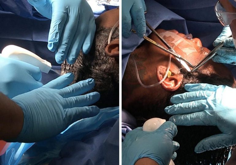 Mira la cirugía que le quitó todo el pegamento del cabello a la influencer Tessica Brown