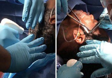 VIDEO | Mira la cirugía que le quitó el pegamento del cabello a la influencer Tessica Brown