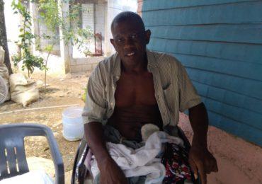 Hombre pide que le amputen una pierna en Yamasá desesperado por el dolor