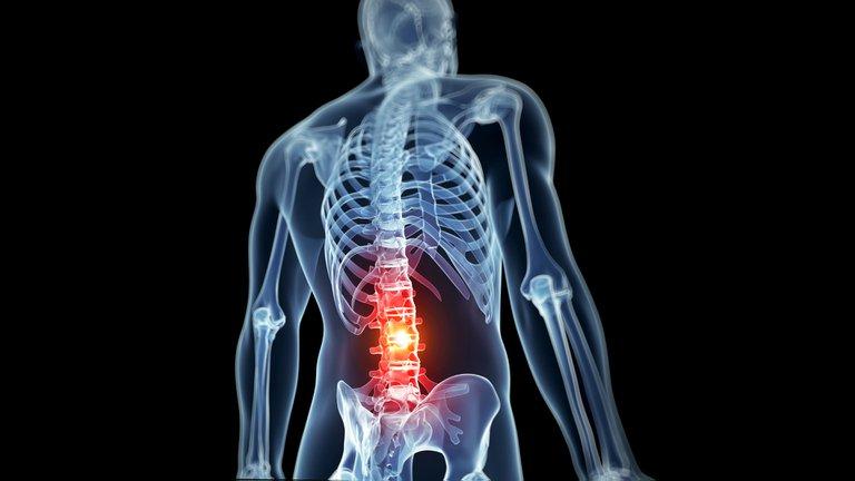 Cómo la robótica ingresa al quirófano para revolucionar la cirugía de columna