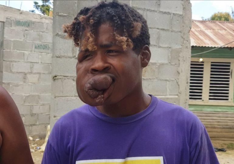 VIDEO | Extraña enfermedad desfigura el rostro de un joven de 19 años