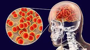 24 de abril Día Mundial contra la Meningitis