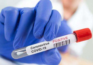 Coronavirus RD | Reportan 642 nuevos casos y seis muertes en las últimas 24 horas