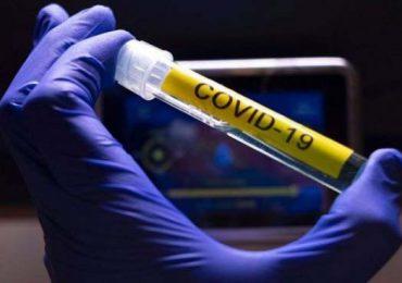 Coronavirus RD | 389 casos y cinco muertes notificadas en las últimas 24 horas
