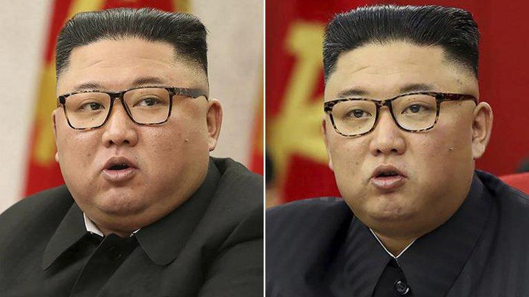 El antes y después de Kim Jong-un y las especulaciones sobre su estado de salud