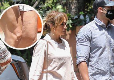 La foto que demuestra que Jennifer López también tiene celulitis