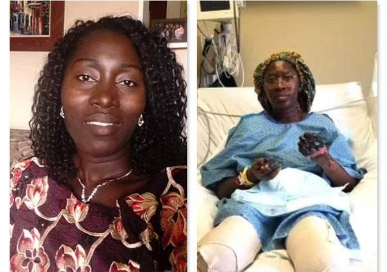 Aseguran mujer pierde ambas piernas tras recibir segunda dosis de vacuna de Pfizer