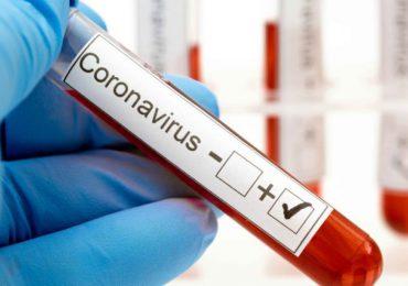 Coronavirus RD | Salud Pública reporta una defunción y 215 casos nuevos