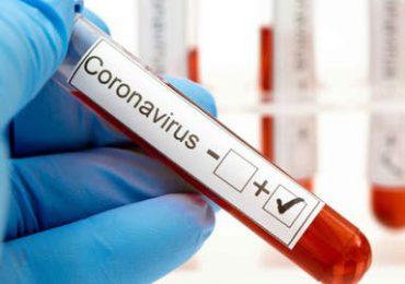 Coronavirus RD | Registra 373 nuevos contagios y cuatro muertes