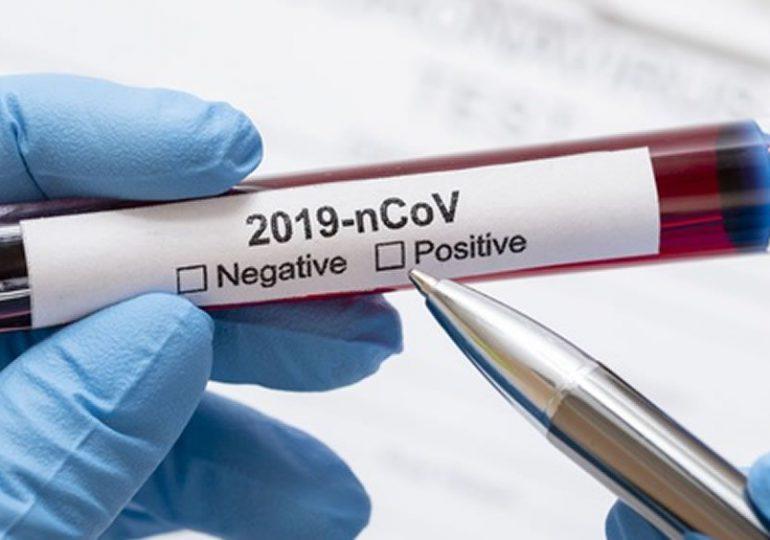 Coronavirus RD | Reportan 465 casos nuevos de SARS COV-2 y ninguna defunción
