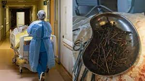 Extraen más de un kilo de clavos y tornillos del estómago de un hombre en Lituania